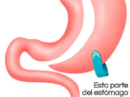 Programa de Cirugía para el Control de Peso - Honduras..